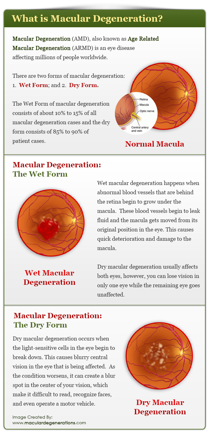 Macular Degeneration (AMD), also known as Age Related Macular Degeneration (ARMD) is an eye disease affecting millions of people worldwide.  There are two forms of macular degeneration: 1.  Wet Form; and 2.  Dry Form.  The Wet Form of macular degeneration consists of about 10% to 15% of all macular degeneration cases and the dry form consists of 85% to 90% of patient cases.  Macular Degeneration:  The Wet Form:  Wet macular degeneration happens when abnormal blood vessels that are behind the retina begin to grow under the macula.  These blood vessels begin to leak fluid and the macula gets moved from its original position in the eye.  This causes quick deterioration and damage to the macula.  Dry macular degeneration usually affects both eyes, however, you can lose vision in only one eye while the remaining eye goes unaffected.  Macular Degeneration:  The Dry Form  Dry macular degeneration occurs when the light-sensitive cells in the eye begin to break down.  This causes blurry central vision in the eye that is being affected.  As the condition worsens, it can create a blur spot in the center of your vision, which make it difficult to read, recognize faces, and even operate a motor vehicle.